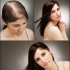Hairfall Woman