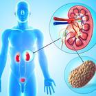 Tips to Prevent Buildup of Kidney Stones.