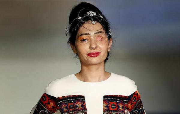 Acid Attack Victim Walks the Ramp in NY