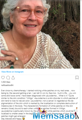 Nafisa Ali diagnosed with leucoderma; says 'you win some and loose some'
