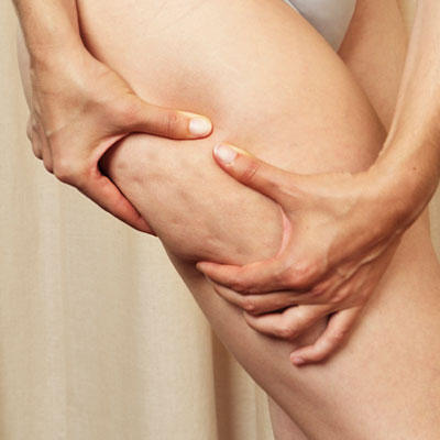 Is Cellulite Making you Ugly?