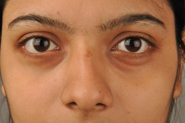 Why Do I Have Dark Circles Under My Eyes?