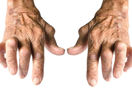 Don't Allow Arthritis to Limit Your Life