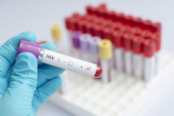 New hope for HIV cure