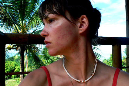 Acne Myths & Acne Facts (Part I)