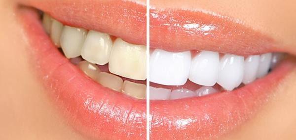 3 Awesome Tips to Whiten Your Teeth at Home.