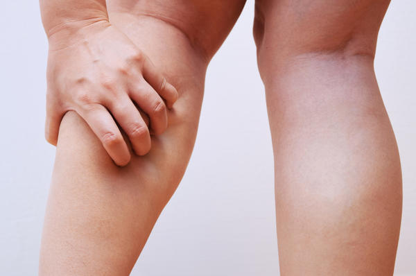 Why Do We Get Leg Cramps?