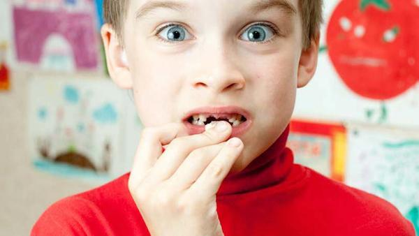 Should Your Child's Wobbly Teeth be Pulled Out?
