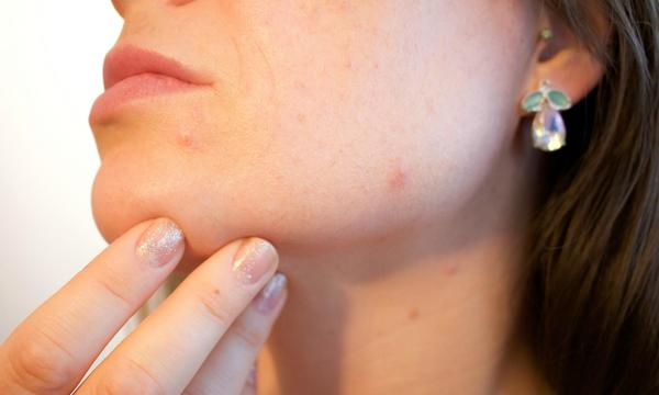 Dietary Changes You Need to Make When You Have Bad Acne!