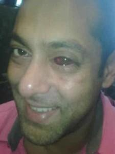 Salman Khan Red Eyes Look Still