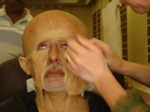 Amitabh Bachchan Surgery For Paa
