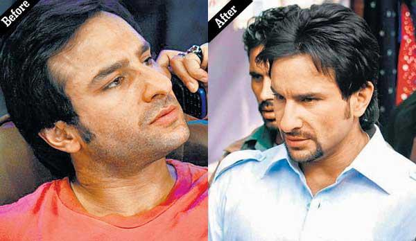 Saif Ali Khan Look After Cosmetic Surgery