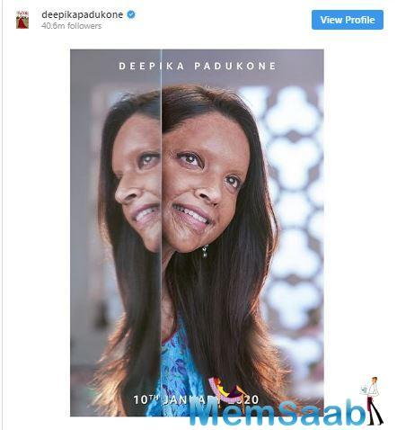 A source close to the film tells ETimes that fans can expect the first official trailer of 'Chhapaak' in the first week of December! This means that fans will get a taste of what's in store, about a month before its big release in January 2020.