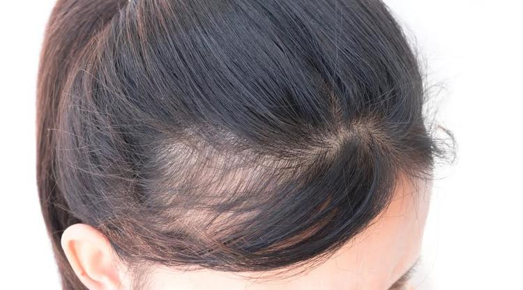 Lifestyle Tips that Help in Dealing With Thinning Hair